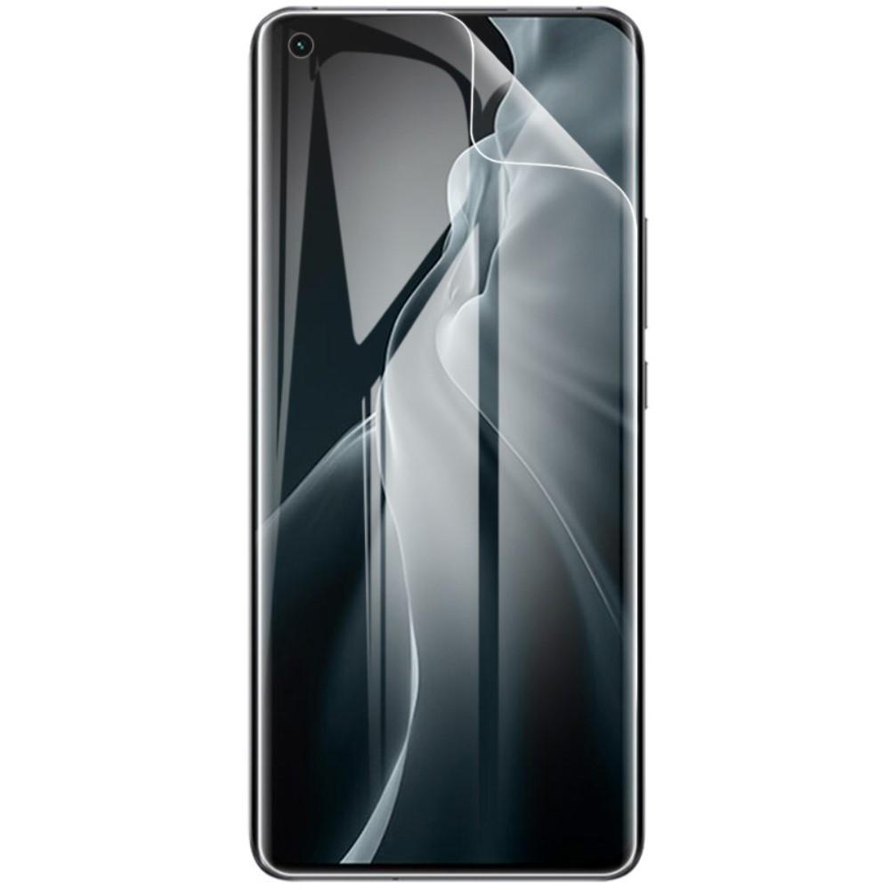 2-Pack Hydrogel Skärmfilm Xiaomi Mi 11/Mi 11 Ultra